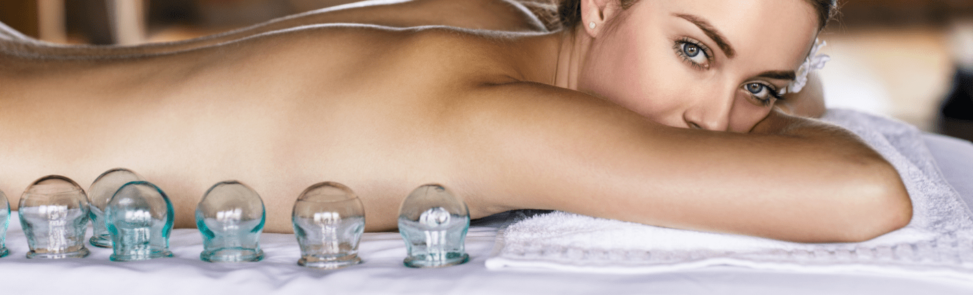 You Don't Have to Be An Athlete to Benefit From Cupping Therapy